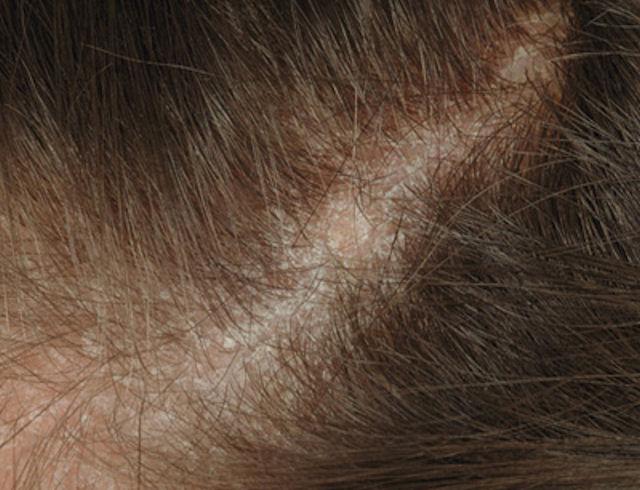 Дерматит волосистой части головы
